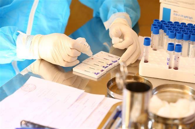 Xét nghiệm virus SARS-CoV-2. Ảnh: TTXVN