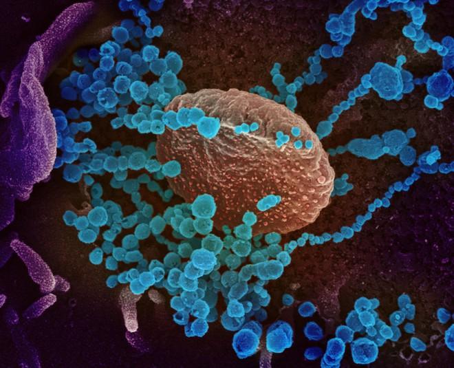 SARS-CoV-2 (các chấm tròn nhỏ) phát triển từ tế bào nuôi cấy trong phòng thí nghiệm. Ảnh: AFP