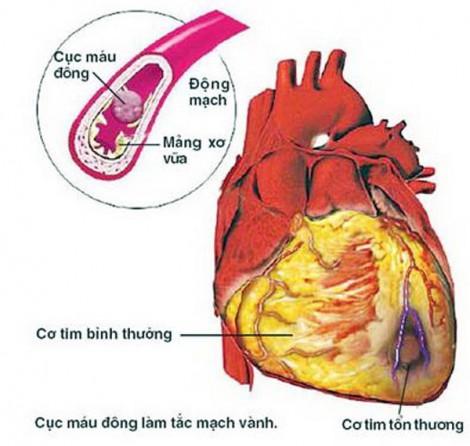 Hút thuốc lá và bệnh tim mạch