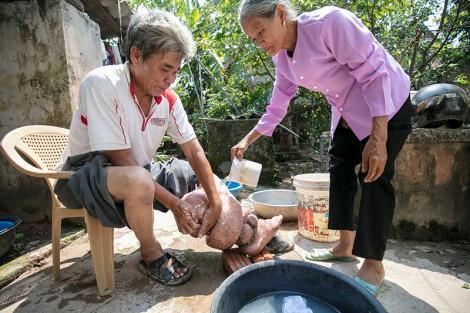 WHO công nhận Việt Nam đã loại trừ được bệnh phù chân voi
