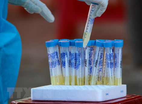 Bộ Y tế: Thêm 2 ca tử vong vì bệnh lý nền nặng và mắc COVID-19